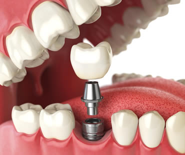 Complete Your Smile with Dental Implants