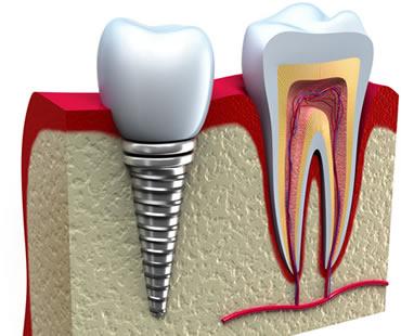 dental implants dentist in Longview