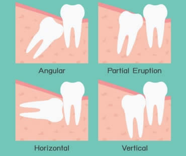 Wisdom Teeth: Should They Stay or Should They Go?