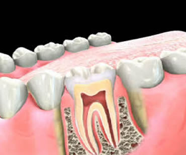 Do You Need a Root Canal Procedure?