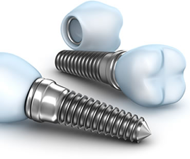 Implant dentist in Longview