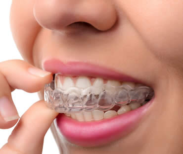 Should My Teen Choose Invisalign or Traditional Braces