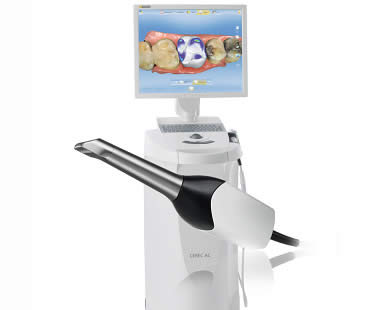 Cerec Longview